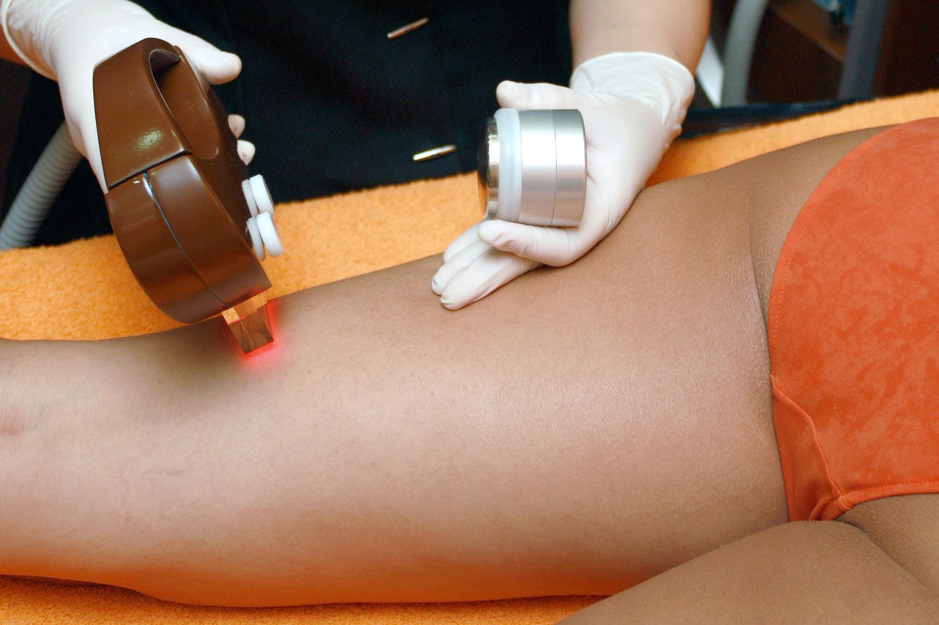 depilação a laser 2