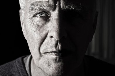 Xantelasma: Sintomas e Tratamento Caseiro