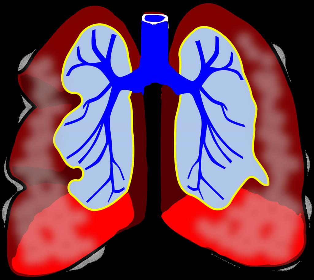 ciprofloxacino 2